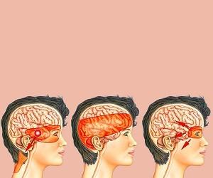 Головная боль напряжения: профилактика и лечение