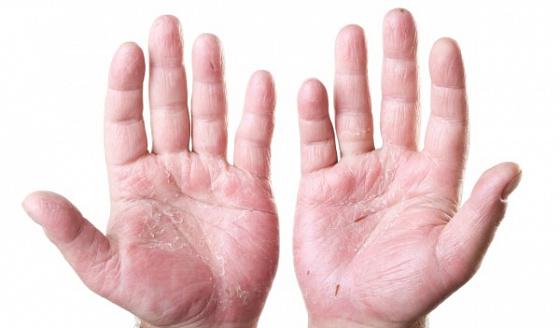 Простые и эффективные способы укрепить кисти рук